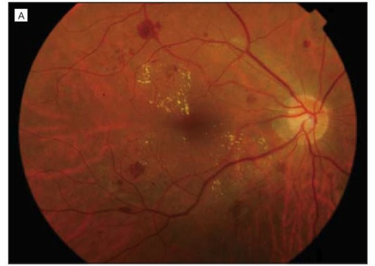 Advances in diabetic retinopathy treatment